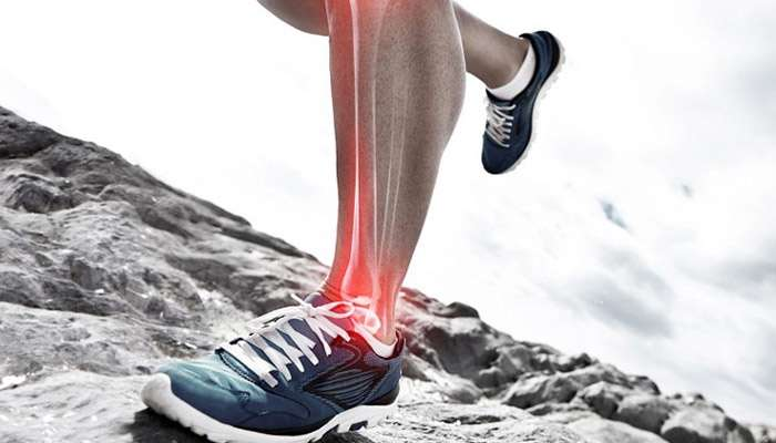 The Runner's Guide to Shin Splints