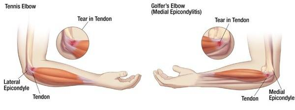 Tennis Elbow and Golfers Elbow