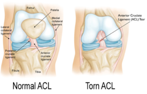 Torn ACL Injruy